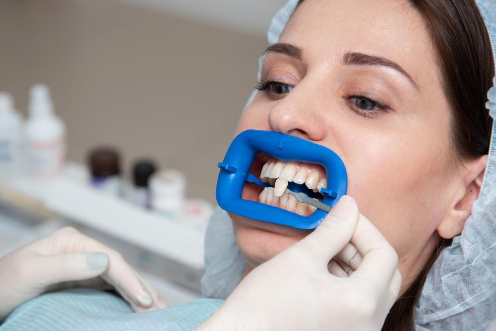 Tanden bleken Den Bosch